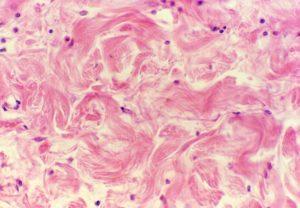Un immagine del tessuto connettivo denso fibroso. Fonte: vialattea.net